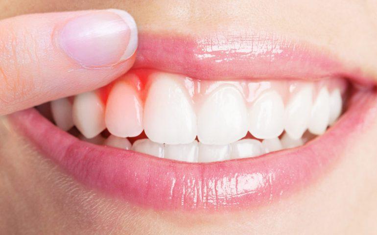 علایم، پیشگیری و درمان کیست دندان