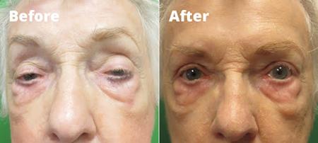 علل افتادگی پلک و درمان افتادگی پلک