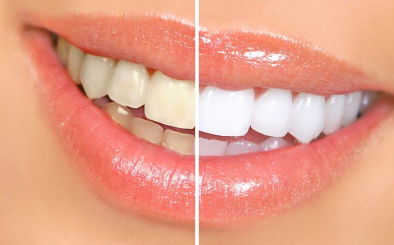 بلیچینگ دندان چیست؟ عوارض و فواید بلیچینگ دندان